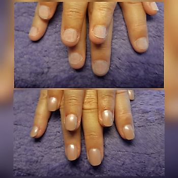 Nagelbedverlenging bij nagelbijten Mirjam's Nagelstudio Beerta